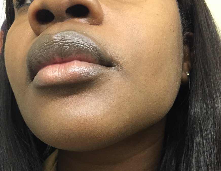 My Top 5 Tips For Improving Hyperpigmentation on Dark Skin